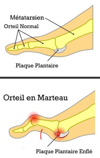 plaque-plantaire