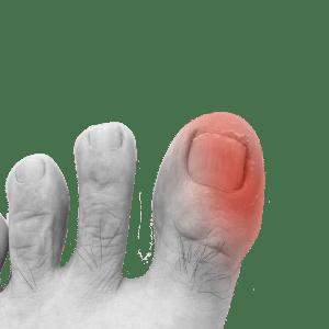 Oignon / Arthrose - Gros orteil