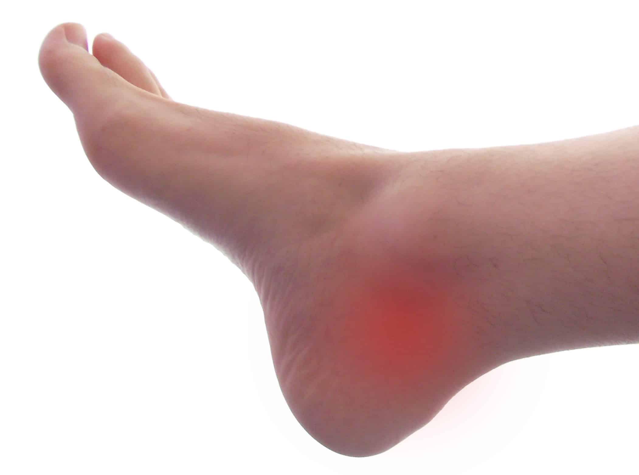 nouvelles images de style exquis large choix de designs Qu'est-ce qui peut causer une douleur interne à la cheville ...