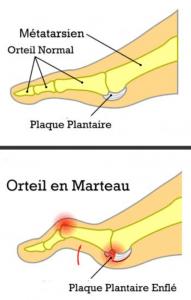 Vidéo Traitement des douleurs sous l'avant-pied... Métatarsalgie - Dysfonction de la plaque ...